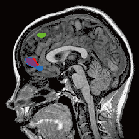 fMRI imaging of brain activity when simulating others