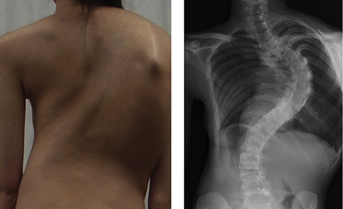 Photo and x-ray of girl with adolescent idiopathic scoliosis