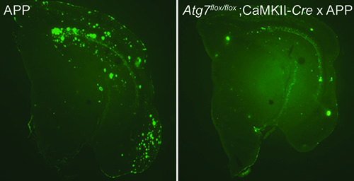 Photos showing that plaque formation depends on autophagy
