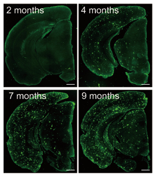 fluorescence imaging of ABeta accumulation is a second model mouse