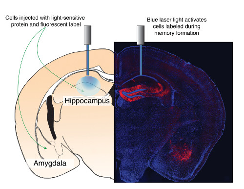 cartoon and image of the hippocampus and amygdala