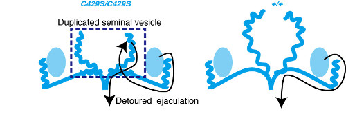 schematic depicting abnormal development of seminal vesicles