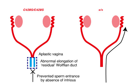 schematic depicting abnormal development of the vagina