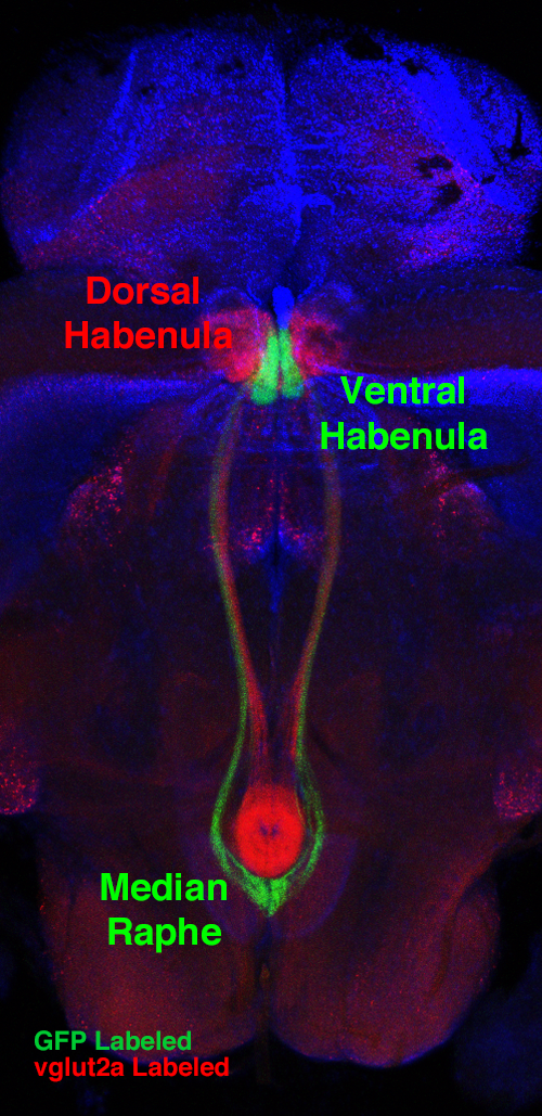 fluorescence labeling of the habenula-raphe pathway