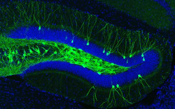 fluorescence imaging - engram cell in the dentate gyrus
