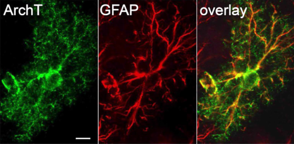 fluorescence labeling of astrocytes