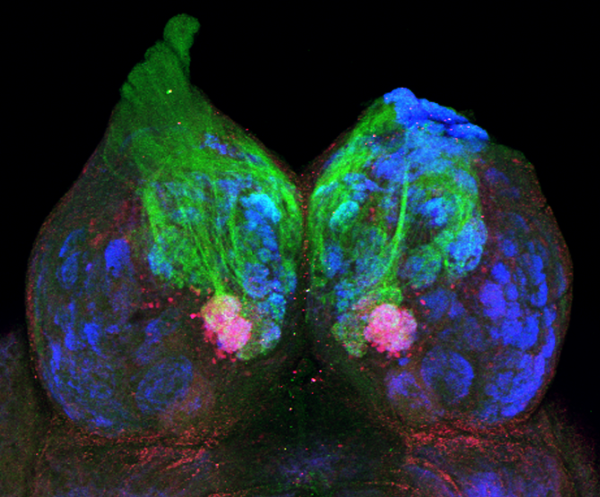 imaging showing where pheromonal PGF2a information enters the brain