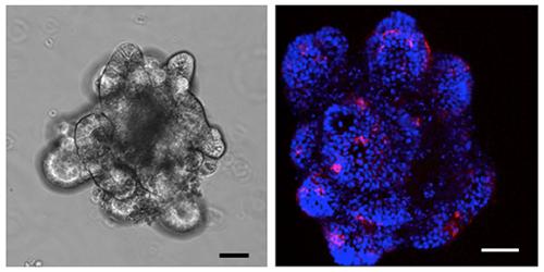 小腸上皮幹細胞から作製したオルガノイドとオルガノイドに誘導されたM細胞の図