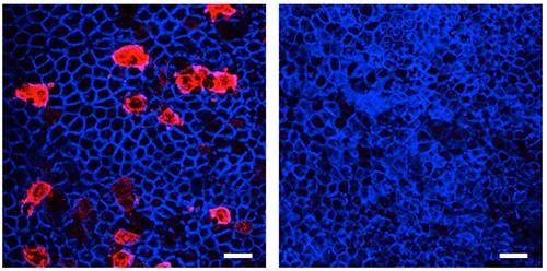 TRAF6欠損マウスにおけるM細胞の欠失の図