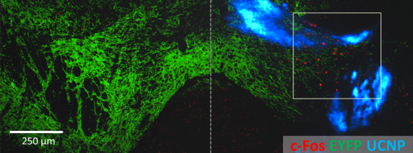 image of fluorescent labeling of VTA neurons and nanoparticles