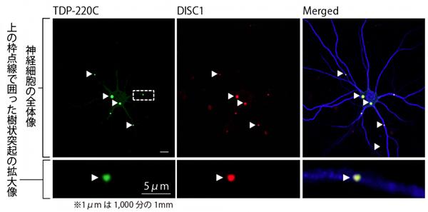 前頭側頭葉変性症(FTLD)モデル神経細胞におけるDISC1とTDP220Cの共凝集の図