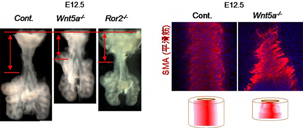 Wnt5aおよびRor2遺伝子変異マウスの気管形態異常の図