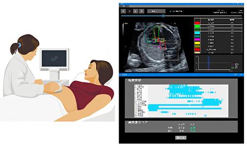 AIを用いた胎児心臓超音波スクリーニング