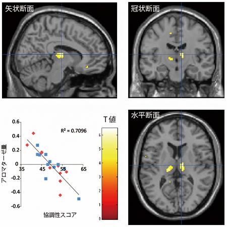 男女ともに視床(黄の部分)での脳内アロマターゼ量が高い人は、協調性スコアが低いの図