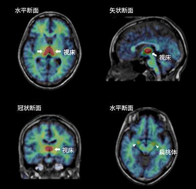アロマターゼのヒト脳での分布の図