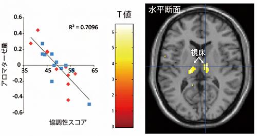 脳内アロマターゼ量と協調性に関連がある脳部位の図