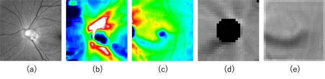 5種類の入力画像のサンプル(緑内障眼)の図