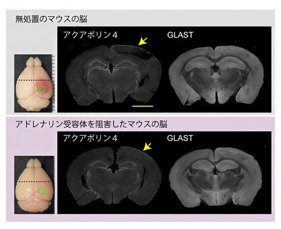 脳梗塞3時間後のアクアポリン4分布の可視化の図