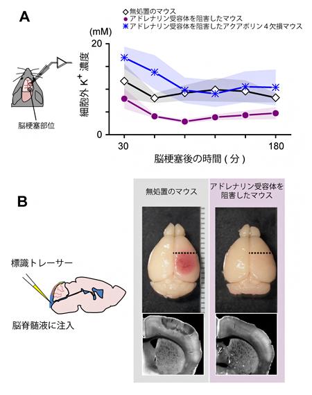 脳梗塞後のカリウムイオン濃度の定量と脳脊髄液浸潤の可視化の図