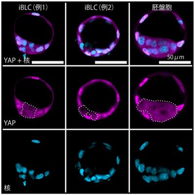 iBLCでの転写因子YAPの細胞内局在の図