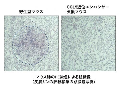 CCL5近位エンハンサー欠損マウスは野生型マウスと比較してがん転移巣の形成が抑制されたの図