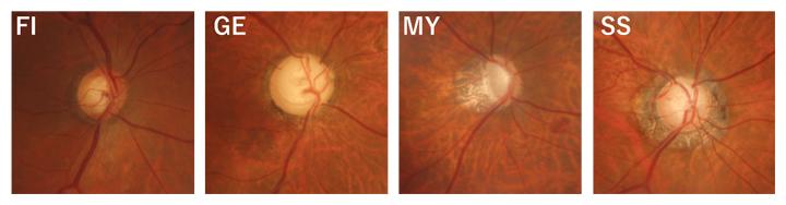 視神経乳頭形状分類(ニコレラ分類)の図