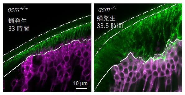 qsm変異体におけるDumpy線維の異常の図