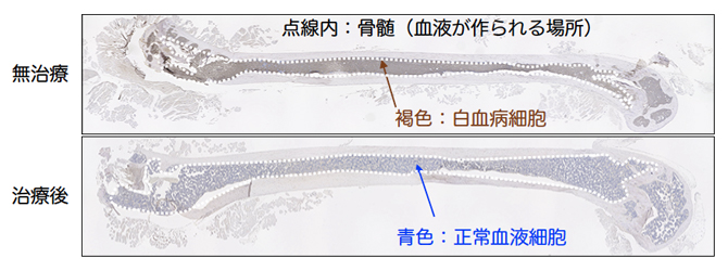 無治療と最適治療後(IAP阻害剤+BCL2阻害剤)の白血病ヒト化マウスの骨の図