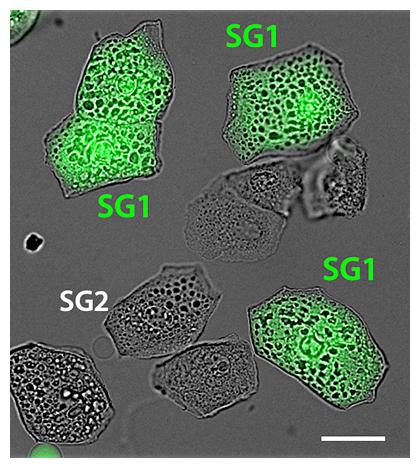 分離したマウス顆粒層SG1細胞の顕微鏡画像の図