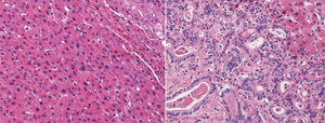 small image of liver tumor tissue