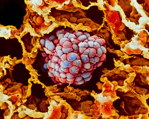 Image of lung cancer cells