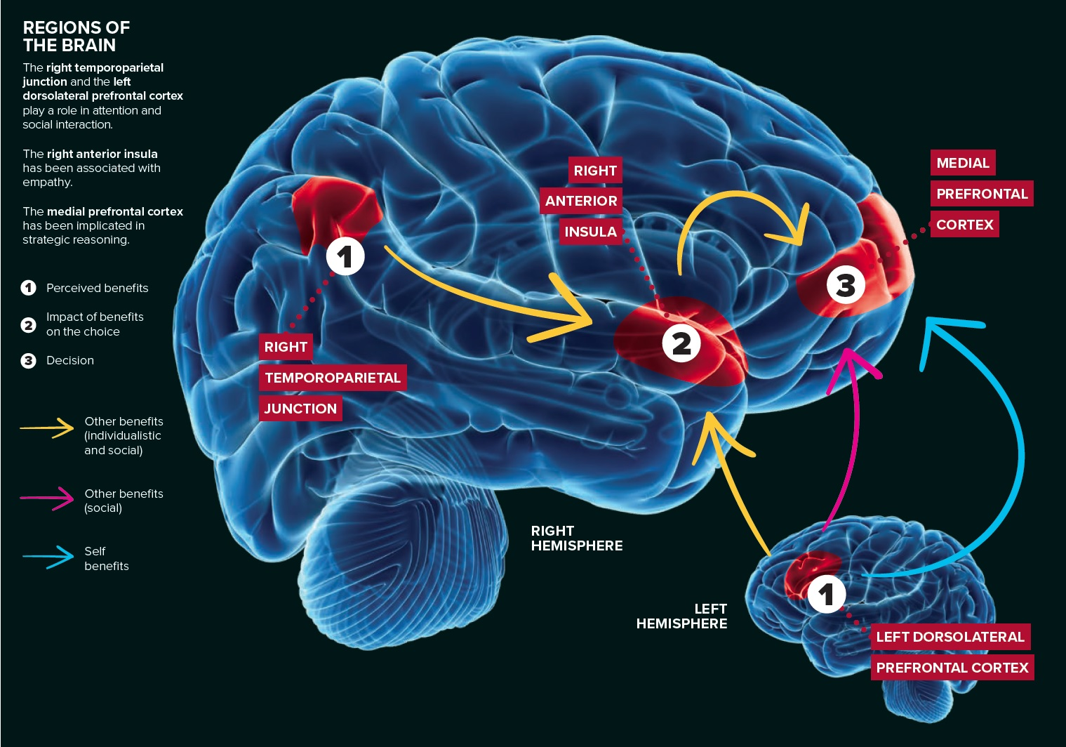 image of regions of the brain