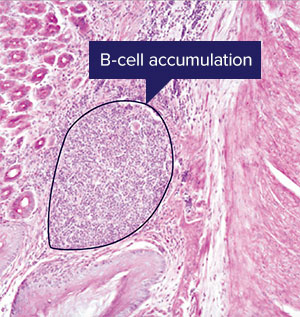 Image of B cell accumulation
