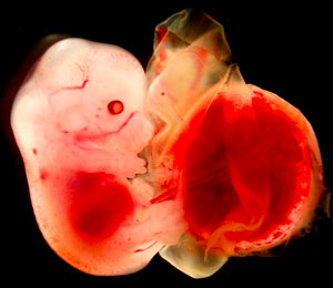 Image of an embryo